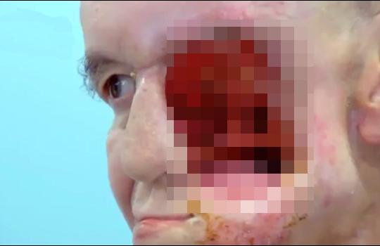 【グロ動画】顔に腫瘍(ガン)ができたら顔面崩壊した・・・
