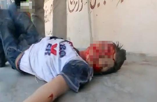 【グロ動画】ISISの釘や破片を詰め込んだ通称アサド爆弾の被害者たち・・・