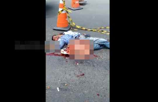 【グロ動画】脇腹から内臓が飛び出したら死ぬ(確信)
