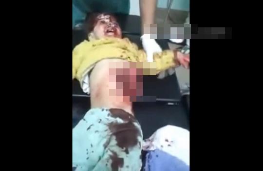 【閲覧注意】自爆テロの犠牲になった子供の内臓が・・・