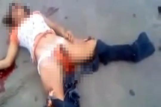 【グロ:事故】死体が散乱する悲惨な事故、女性の股間からなんかでてきてる!!