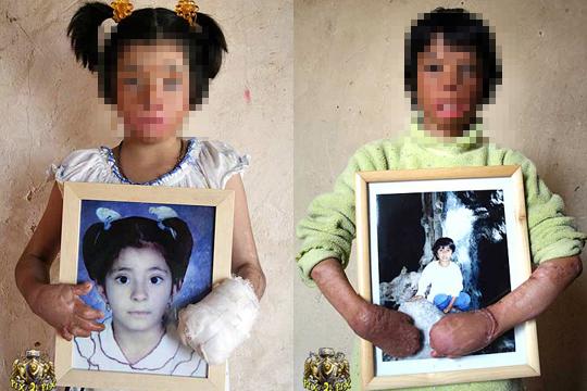 【閲覧注意】戦争の犠牲になった子供達【画像15枚】