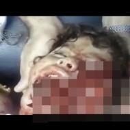 【閲覧注意】顔がごっそり削り取られた少女・・・ ※グロ杉動画