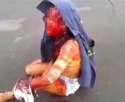 【閲覧注意】交通事故で血塗れの母親・・・その横には即死した5歳の娘・・・
