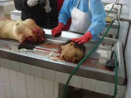 女の子 死体 解剖 グロ画像