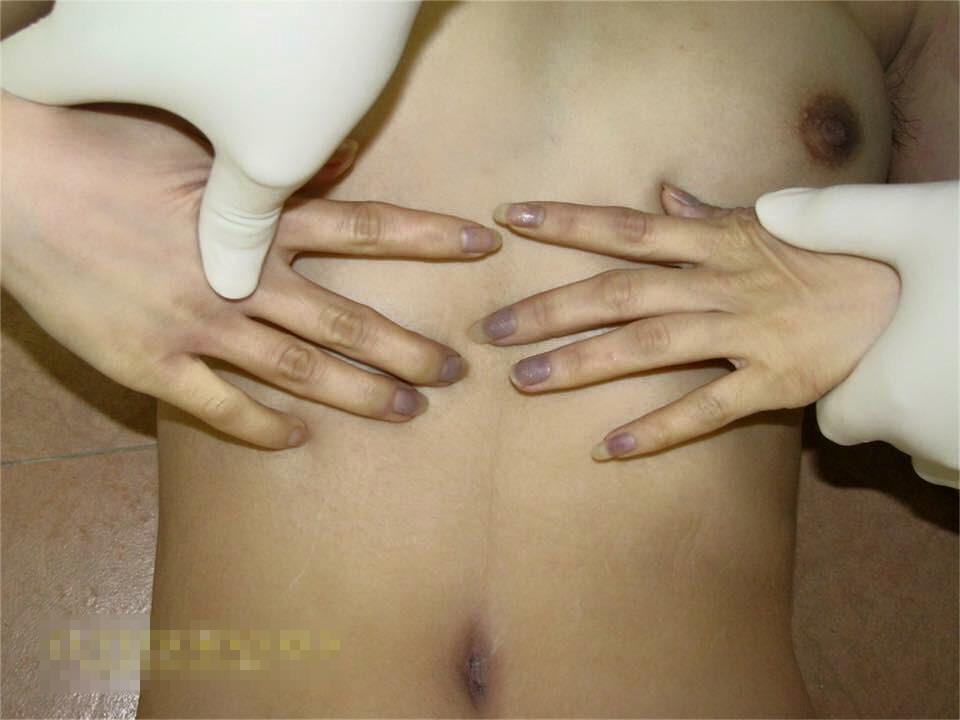 レイプ死体解剖画像