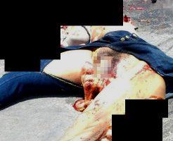 【閲覧注意】事故死した女の子の股裂けてマ●コから内臓出てるんだがパンツ履いてた形跡がない ※画像