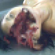 【グロ 女】頭から飛び降り自殺した現場の肉片の散らばりと頭ぱっくり具合はこんな感じ