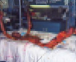 【グロ画像】大量の放射能を浴びた作業員が死亡した国内事故 東海村臨界事故