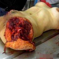 【グロ 画像】レイプされてバラバラにされたり、死体の損壊激しい女の子の画像貼ってく