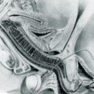 【※勃起注意】MRIでセックスしたらおもったよりエロくて抜いたwww 動画