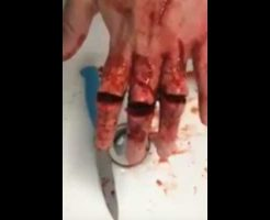 【閲覧注意】メンヘラさん 手首を切ることに飽きて代わりに指を3本切って使い物にならなくした模様・・・ ※グロ動画