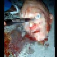 【グロ動画】生首から眼球をナイフでエグリ取っていくブラジルの少年による死体解体映像がクッソ怖い・・・