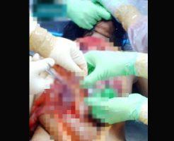 【グロ画像】レイプされて殺された少女を検死解剖 マンコくぱぁ~して中出しされた精子を確認したったw