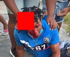 マチェーテで切られた男の頭の皮がペラペラになっててグロい…