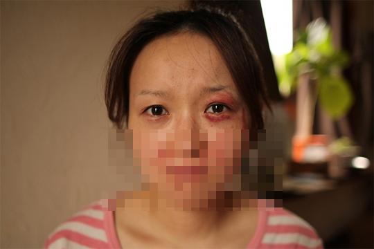 【閲覧注意】DV夫、妻の顔をカチ割る。(画像3枚)