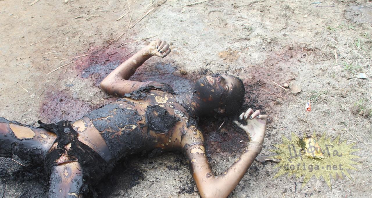 女性焼死体グロ画像
